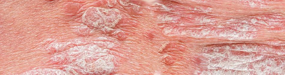 lupiez rozowy gilberta